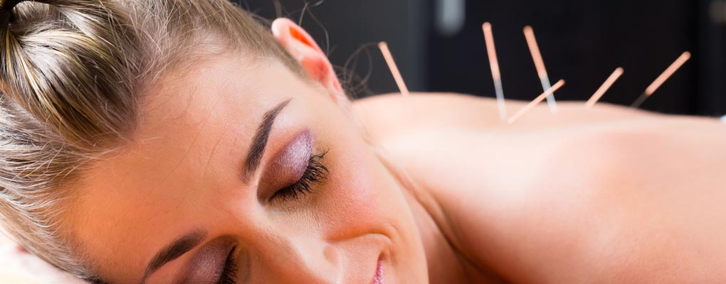 photo of relaxed woman with acupuncture needles in upper back