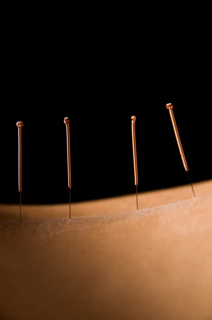 Acupuncture needles inserted in skin