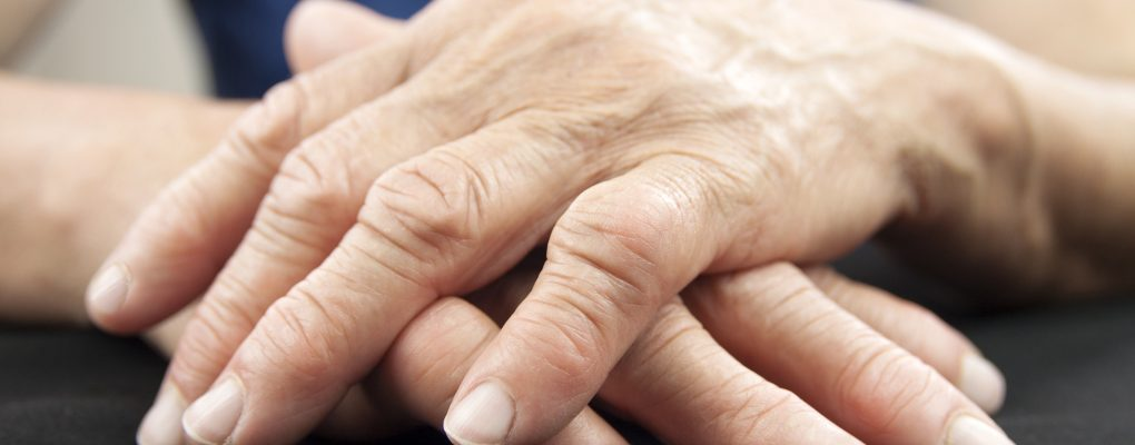 Photo showing person's hands affected by rheumatoid arthritis