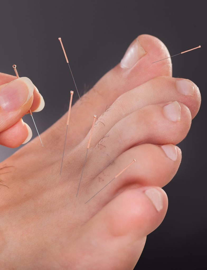 Man receiving acupuncture in foot