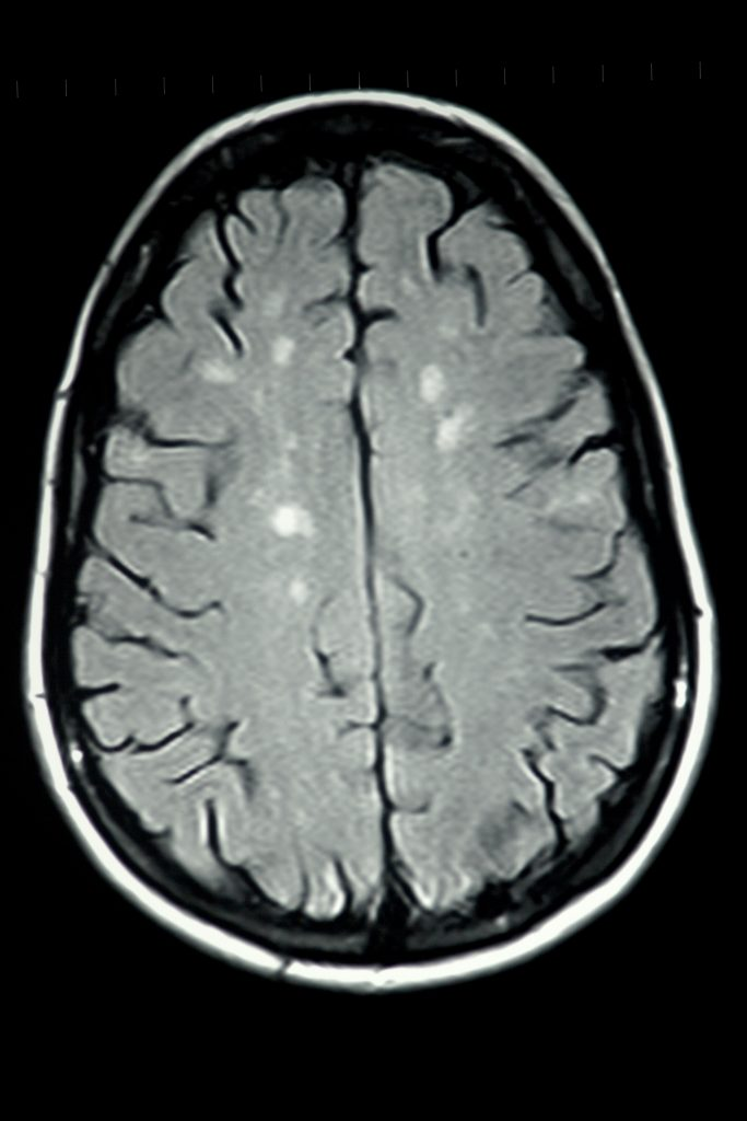 MRI scan of brain showing demyelination associated with multiple sclerosis