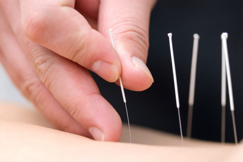 Picture of acupuncture needles being inserted into skin