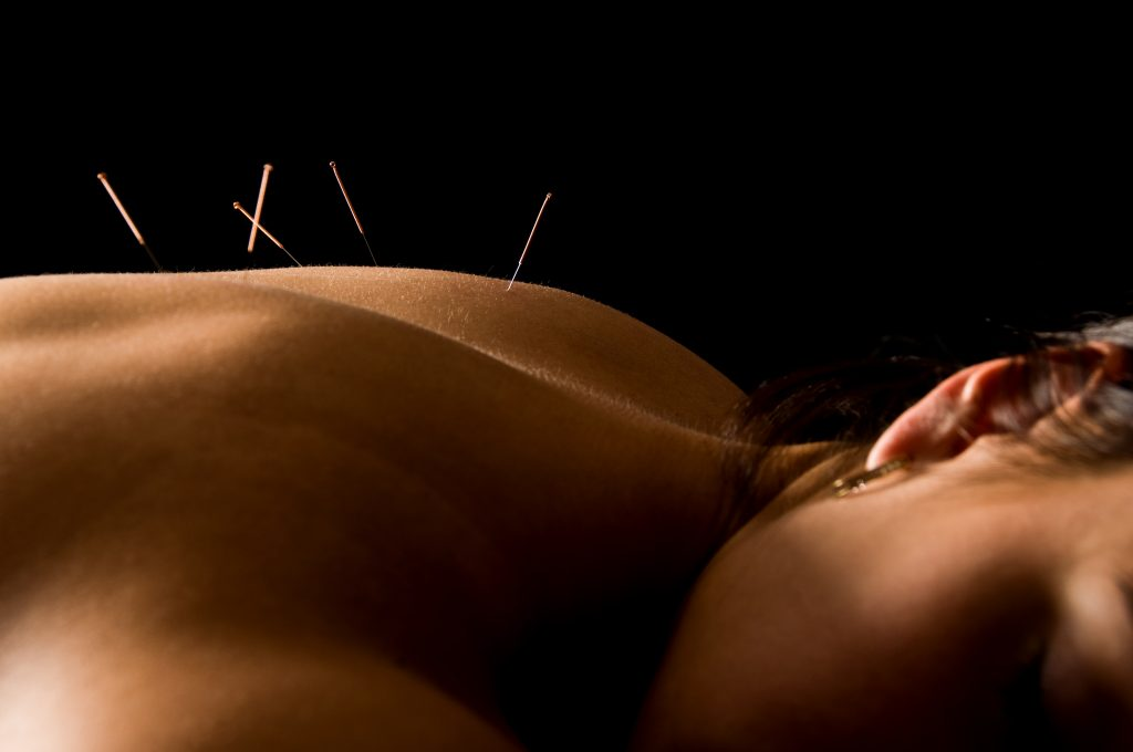 Photo of relaxed person receiving acupuncture