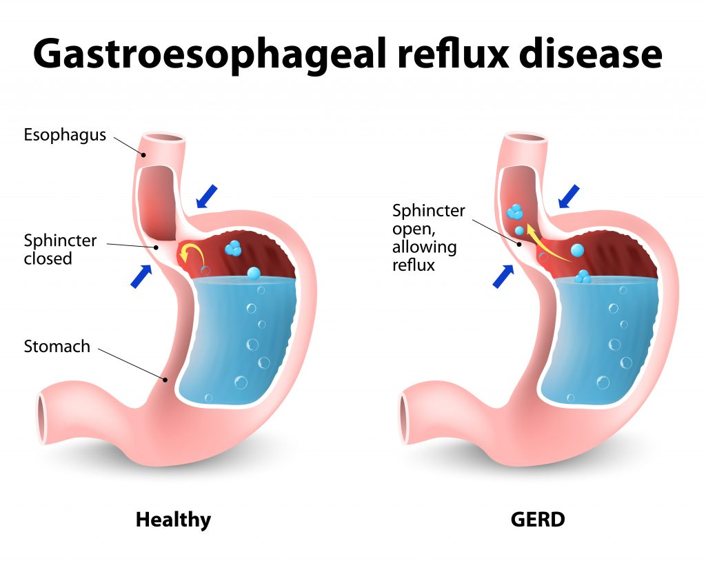 diagram showing mechanism of reflux disease