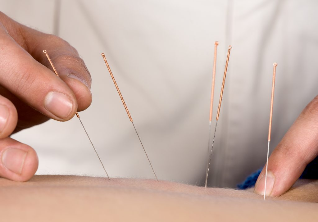 photo of acupuncture needles being inserted