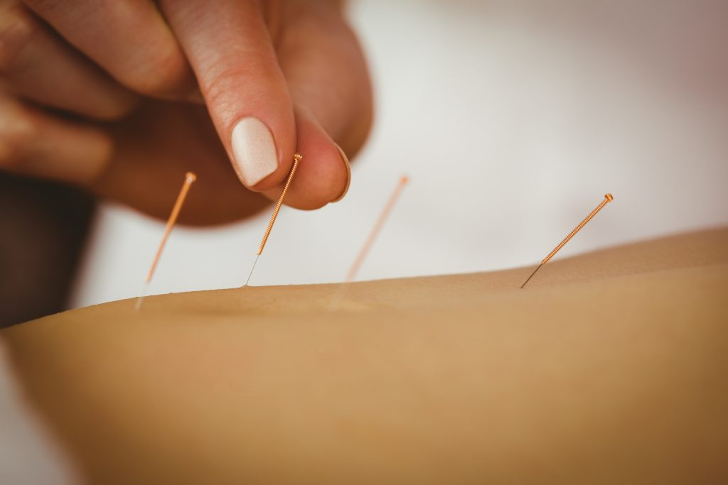 Photo of person receiving acupuncture needles